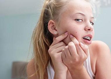 粉刺可以直接用手挤吗?
