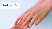 为什么会患上湿疹?